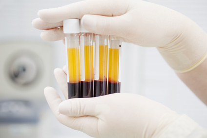 Platelet-rich plasma (prp) therapy